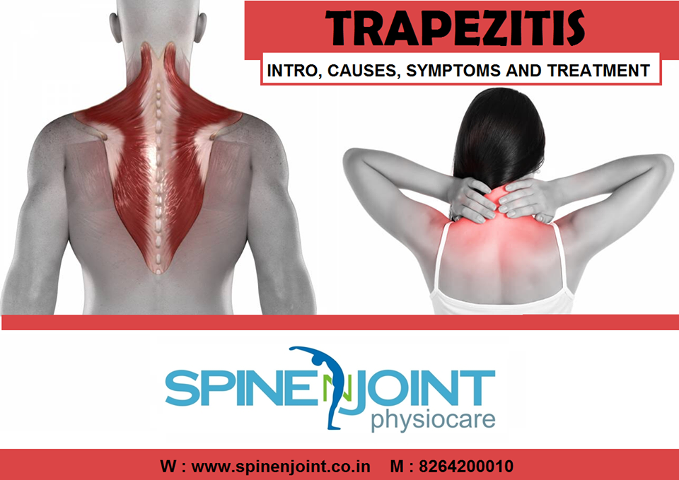 Trapezitis Causes Symptoms And Treatment Spine N Joint